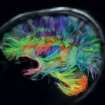 La conscience et le cerveau, pas Stanislas Dehaene. Présentation par Jean-Paul Baquiast 31/03/2014 | Robot & Cerveau | Scoop.it