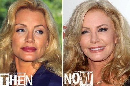Shannon Tweed Plastic Surgery Before & After | Celebrity Plastic Surgery | Scoop.it