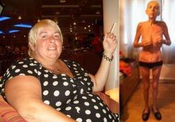 British woman must eat 5,000 calories a day after botched gastric bypass surgery leaves her starved and skeletal | STEM Love | Scoop.it
