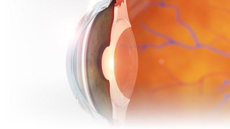 Polygon Medical Animation - Crystalline Lens Illustration | 3D Medical Illustrations | Scoop.it