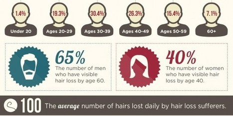 Hairloss – Causes, Statistics and Solutions | Hair Growth | Scoop.it