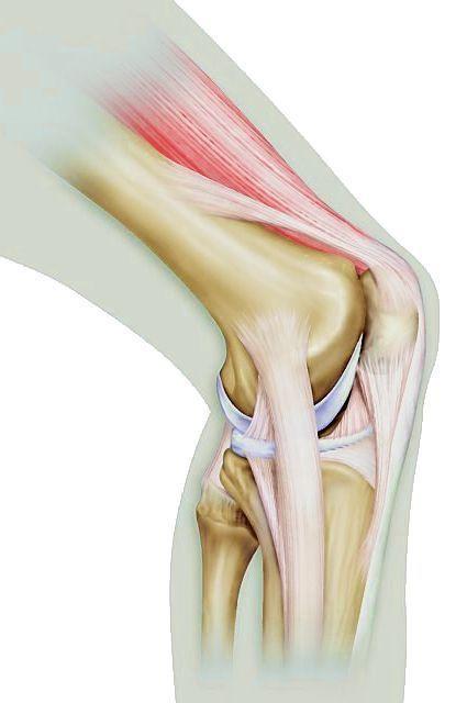 Knee Pain Treatment by Calgary Chiropractor:Dr. Kamal Ikram | Hamptons ChiroCare | Hamptons Chirocare | Scoop.it