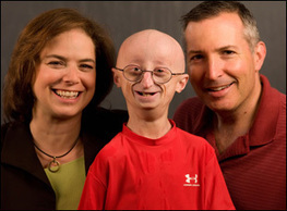 17-YEAR-OLD SAM BERNS DIES FROM PROGERIA, MOVING MILLIONS WITH HIS PERSPECTIVE ON LIFE | Success Stories From Across The World | Scoop.it