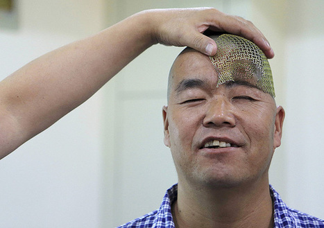 Chinês que fraturou crânio se recupera com prótese feita em impressora 3D - 24/09/2014 - Equilíbrio e Saúde - Folha de S.Paulo | Technology Empowering People | Scoop.it