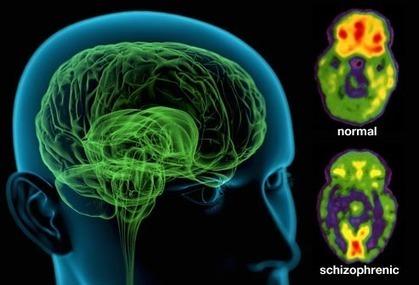 Δ S > 0 • scienceyoucanlove: What Is Schizophrenia? ... | ps4-5 | Scoop.it