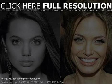 Angelina Jolie Plastic Surgery Before and After Photos - 2014 | Plastic Surgery Before and After Photos | Scoop.it