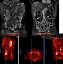 L'entéroIRM: pour un meilleur diagnostic de la maladie de Crohn | maladie de crohn | Scoop.it