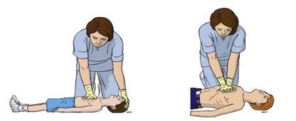 Tips de Primeros Auxilios: Reanimación Cardiopulmonar   Reanimación Cerebrocardiopulmonar   Scoop.it