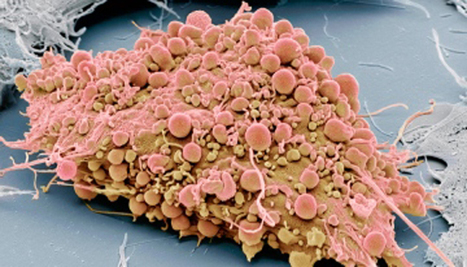 Balancing Paradigms with Mesenchymal Stromal Cells   Stem Cell News   Scoop.it