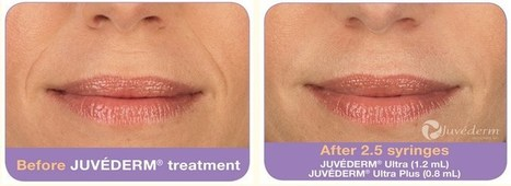 Juvederm: Remove your wrinkles and folds with us | laser scar removal mississippi | Scoop.it