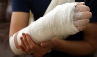 La cigarette aggrave les fractures | Toxique, soyons vigilant ! | Scoop.it