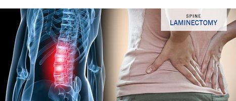 Best Lumbar Laminectomy Surgery India | Spine Specialist in Chennai | Best Orthopedic Hospital in Chennai | Scoop.it