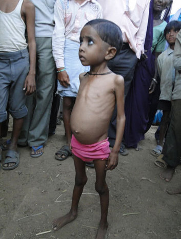 Underweight and Stunted Children: The Indian Paradox - NewsClick | Zambian Bloggers Network News Curated | Scoop.it