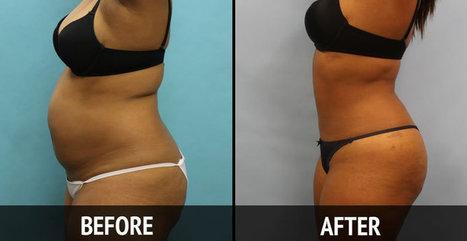 Tummy Tuck Alternative | Tummy Tuck in Florida - ScupltHD | Liposuction | Scoop.it