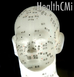 Acupuncture Improves Head Trauma Recovery - New Research | Acupuncture | Scoop.it