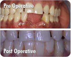Smile Make Over Dental Clinic | Health | Scoop.it