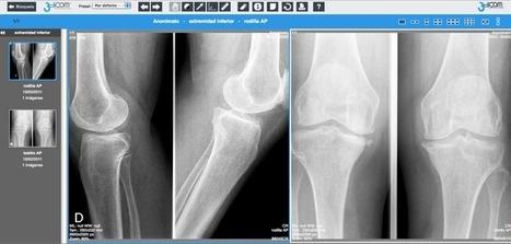 Cuatroochenta desarrolla para 3Dicom un visor web de imágenes radiológicas con la tecnología de los mapas on line para mejorar la telerradiología en hospitales | 480 :: cuatroochenta - Desarrollo m... | LA TELERADIOLOGIA COMO AYUDA DIAGNOSTICA | Scoop.it