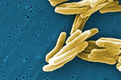 What is the Treatment of Tuberculosis? | Diseases and Conditions | Scoop.it