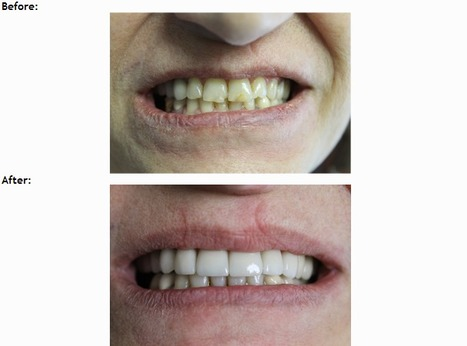 #root #canal #treatments #encino - easyfamilydental | Easy Family Dental | Scoop.it