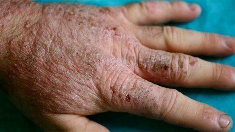 Le méthylisothiazolinone, un ennemi si près de vous | ICI.Radio-Canada.ca | Les allergènes et l'allergie cutanée | Scoop.it
