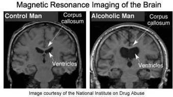 Neuroscience For Kids - alcohol | ISN PROJET | Scoop.it