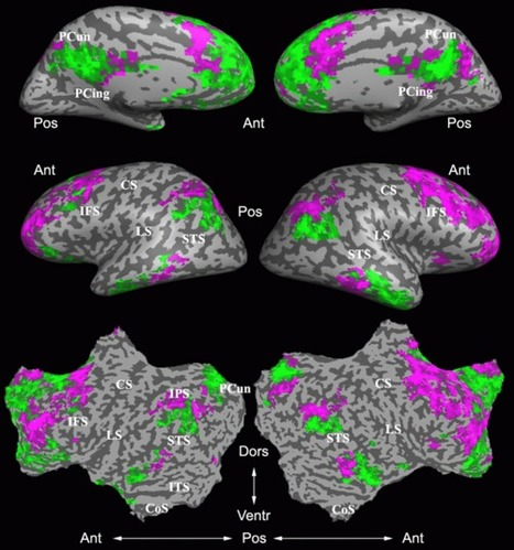 Brain circuits for visual categorization revealed by new experiments   Psychology and Brain News   Scoop.it