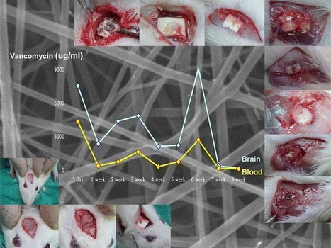 Biodegradable Drug-Eluting Poly[lactic-co-glycol acid] Nanofibers for the Sustainable Delivery of Vancomycin to Brain Tissue: In Vitro and in Vivo Studies - ACS Chemical Neuroscience (ACS Publicati... | Dental Implant and Bone Regeneration | Scoop.it