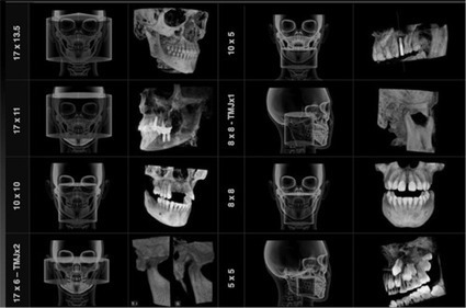 UCSF: 3D X-Rays in Dentistry? | 3D Maxillofacial Imaging | Scoop.it