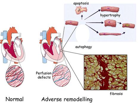 Vers un nouveau traitement de l'insuffisance cardiaque? | UCL Actus Recherche | Scoop.it