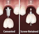 Which Implant Crown Attachment is Right for You? - Michael J. Booth, D.D.S. P.C.   Tooth Implant   Scoop.it