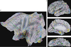 33rd Square: The Brain's Visual Perception Areas Mapped In Breakthrough Study | Science, Technology, and Current Futurism | Scoop.it