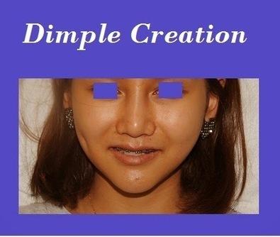 Bangkok Aesthetic Surgery Center: Dimple Creation Price In Thailand | Bangkok Aesthetic Surgery | Scoop.it