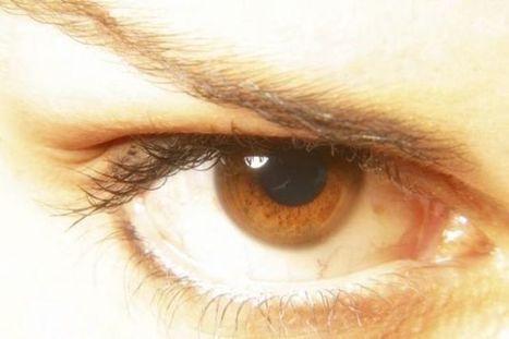 Por qué los ojos se ponen amarillos | El cuidado de los ojos y de la visión | Scoop.it