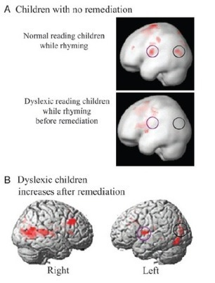 Neuroeducación: estrategias basadas en el funcionamiento del cerebro | A New Society, a new education! | Scoop.it