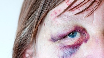 Anti-domestic violence campaigners call for law change - ITV News   Story Telling as a communication tool   Scoop.it