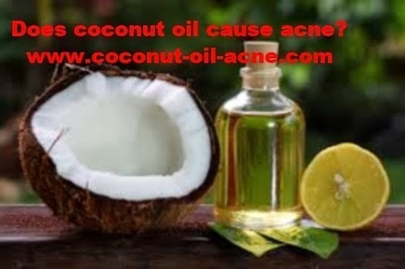 Does coconut oil cause acne? | Does Coconut Oil Really Treat Acne? If so How? | Scoop.it