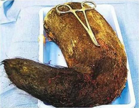 Doctors remove hairball weighing 4 lbs from girl's intestines | It's Show Prep for Radio | Scoop.it