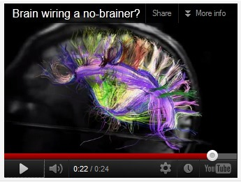 The Symphony Inside Your Brain | NIH Director's Blog | NIH Director's Blog - video | News from the world - nouvelles du monde | Scoop.it