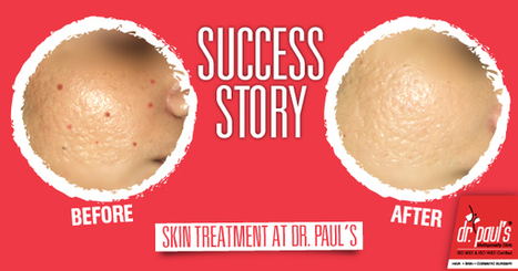 Success Story –Acne Treatment | Skin Care | Scoop.it