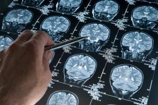 Quando operare il cervello è utile per combattere la depressione | Tristezza, depressione, male di vivere | Scoop.it