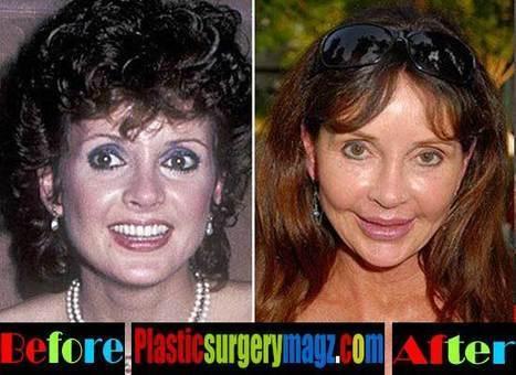 Jacklyn Zeman Plastic Surgery Gone Wrong | Celebrity Plastic Surgery News | Scoop.it