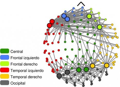 El Deterioro Cognitivo Leve bajo una nueva perspectiva   Complex Networks Everywhere   Scoop.it