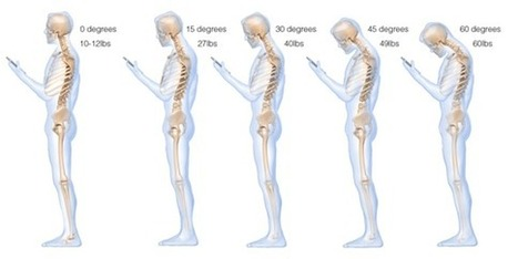 How Texting Hurts Your Neck | Health and Wellness Digest | Scoop.it