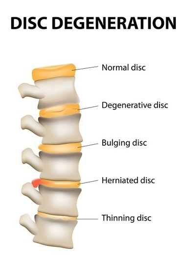 Disc Degeneration in Lower Back: Fast & Natural Recovery - Pain in Lower Back | Back Pain Natural Treatments | Scoop.it