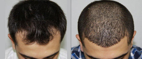 Re- Gain your Personality by Hair Transplant Treatment   Royal Cosmetic Surgery   Scoop.it