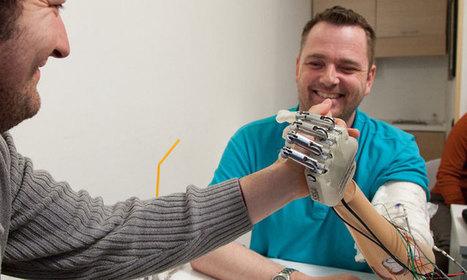 Cette main bionique révolutionnaire permet aux personnes amputées de retrouver le sens du toucher | technologie 3ème | Scoop.it