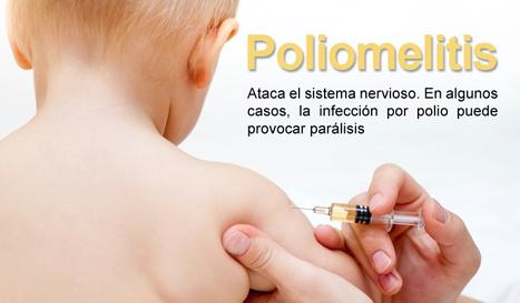 La Poliomielitis - mapa mental | La poliomielitis | Scoop.it