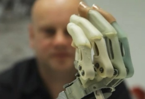 Patient Elects to Have Hand Amputated to Make Way for a Bionic One | UtopianDynamics | Scoop.it
