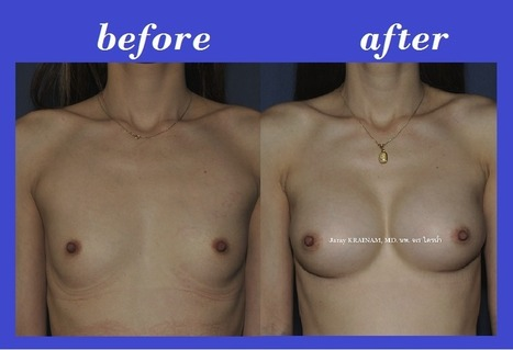 Bangkok Aesthetic Surgery Center Before And After Photos: Tear Drop Silicone Implants Before And After Photos | Best Cosmetic Surgery Clinic In Thailand | Scoop.it