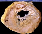 Pathology of Acute Myocardial Infarction | New Group 10 | Scoop.it